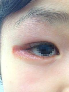 目 の 周り 赤い
