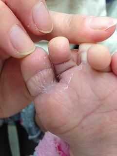 子供 水虫 画像 プールの季節は要注意!子どもの水虫、予防法は?