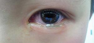 花粉 症 目やに 花粉症による目のかゆみは目薬で治せる?対処法と防止策