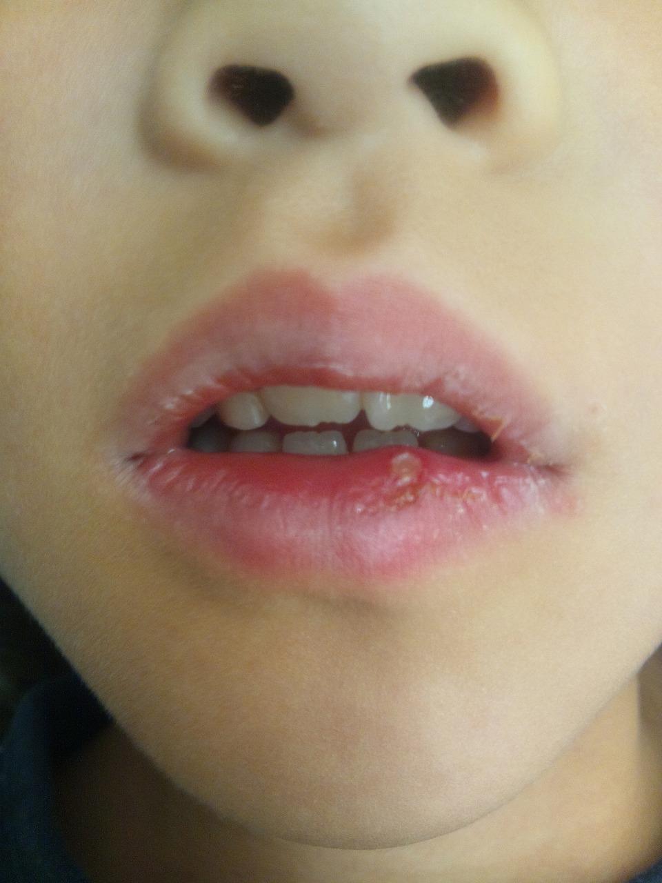 口内炎 下 唇