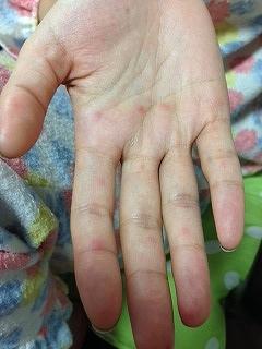 大人に見られた手足口病の典型的な発疹です。 手のひらと手の指に小さな赤い発疹が見られています。 かなり、発疹の部分に痛みを伴うのが、大人の手足口病の特徴です。