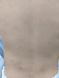 結節性痒疹(背中)治癒後