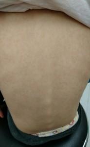 インフルエンザによる多型滲出性紅斑(背中)治癒後