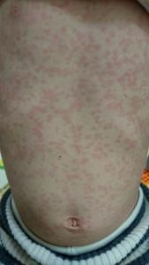 インフルエンザによる多型滲出性紅斑(お腹)