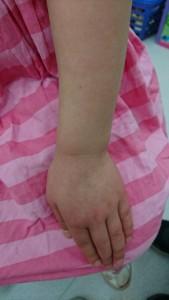 インフルエンザによる多型滲出性紅斑(左手)治癒後