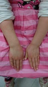 インフルエンザによる多型滲出性紅斑(両手)治癒後