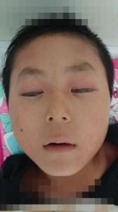 アナフィラキシーと食物アレルギー(顔)③治療後モザイク