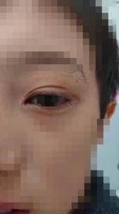 アトピー性皮膚炎と花粉症(目)⑫治癒後 トリミング