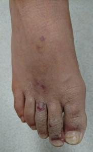 とびひ(足指)治療後