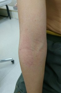 アトピー性皮膚炎(腕)⑳35治癒後②