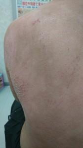 アトピー性皮膚炎(背中)④