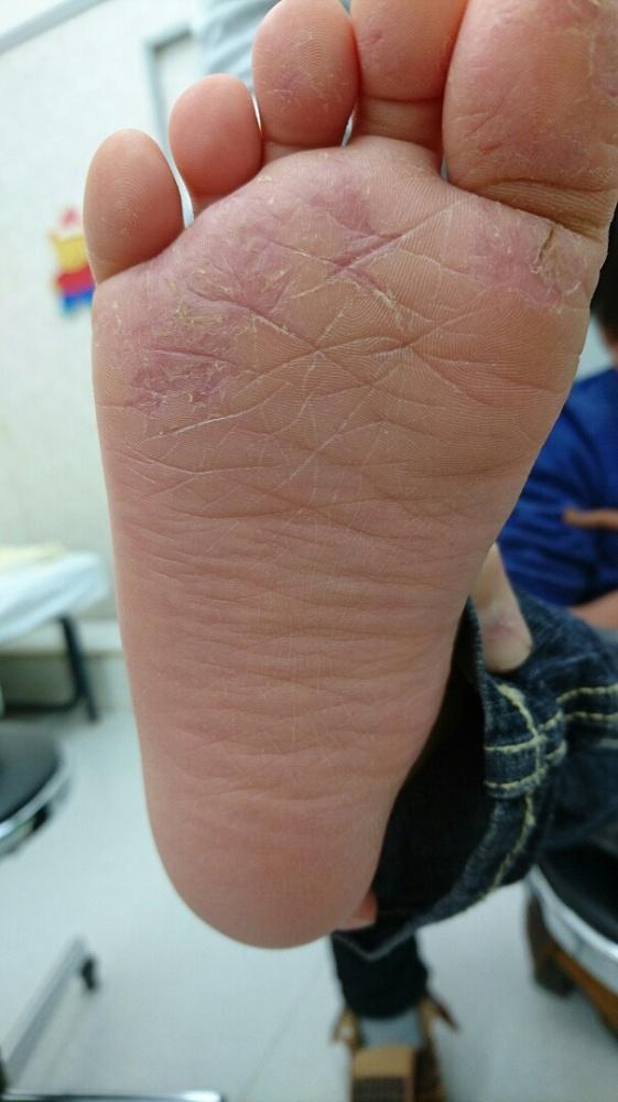 手足口病発疹 おしり