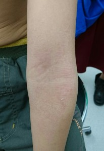 アトピー性皮膚炎(腕)⑳34治癒後②