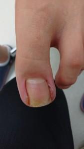蜂窩織炎(足の親指)④治療後