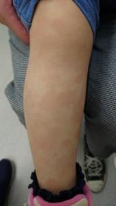 多型滲出性紅斑(足)⑳49