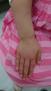 インフルエンザによる多型滲出性紅斑(右手)治癒後