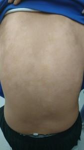 アトピー性皮膚炎(背中)④治癒後