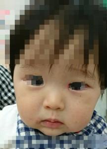 カポジ水痘様発疹症(顔)治癒後モザイク