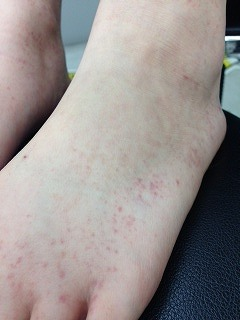 口 消える 手足 まで 発疹 病
