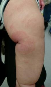 アトピー性皮膚炎(膝)