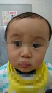 多型滲出性紅班(顔)⑥治療後 モザイク