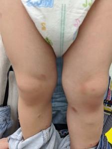 結節性痒疹(足)治癒後⑫