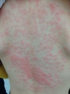 湿疹 赤ちゃん 背中