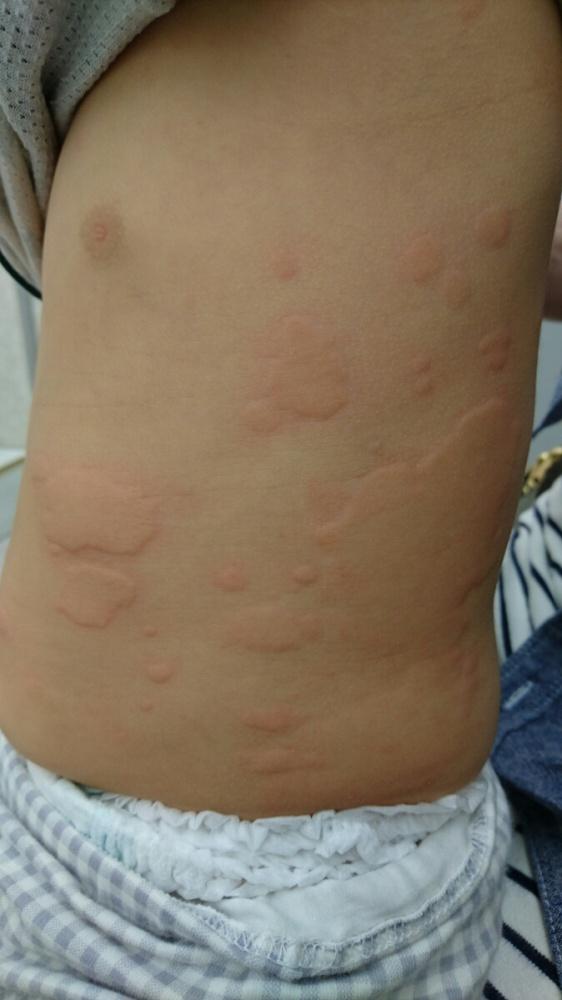 蕁 麻疹 子供