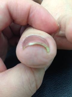 子供 爪 剥がれる