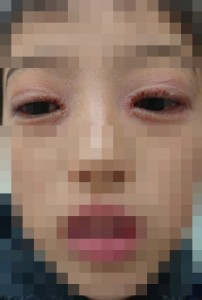 アトピー性皮膚炎と花粉症(目)⑪トリミング