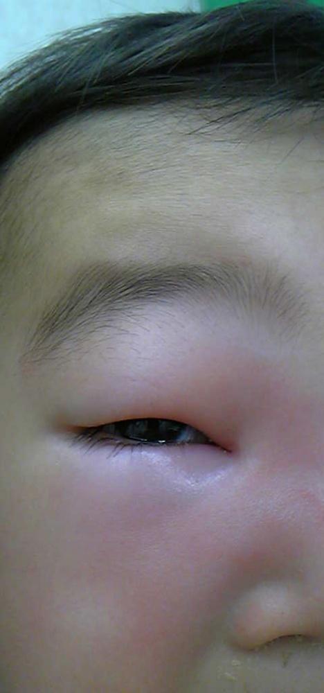 腫れ 治す の 目