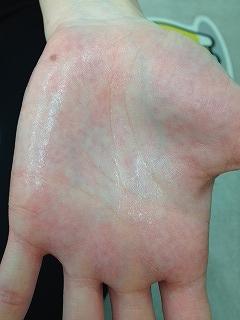 手 湿疹 子供 子供に湿疹!原因と対処法は?小児科と皮膚科のどちらに行くべき?